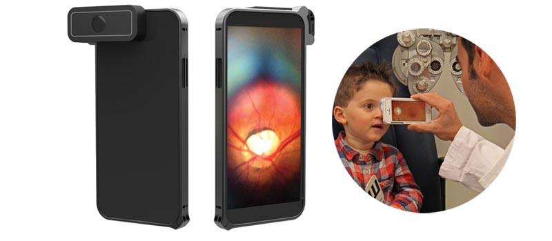 D-EYE : The smartphone retinal camera